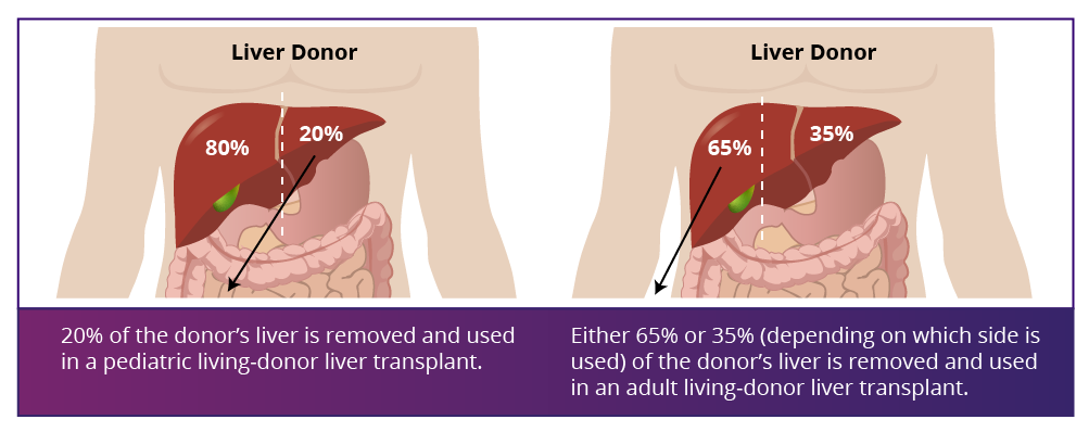 liver donor illustration