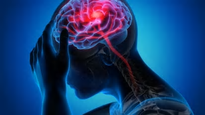 Risk of Intracranial Hemorrhage Following Intravenous tPA