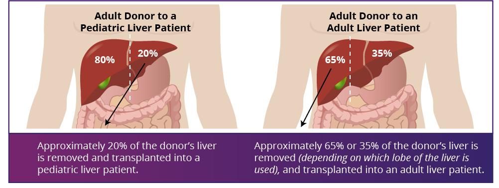Liver Donor peds and adult